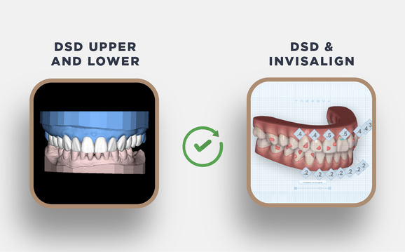 Upgrade Upper and Lower to DSD Invisalign Desktop