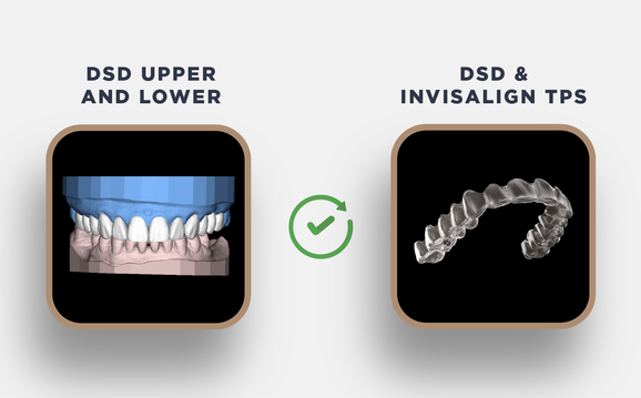 Upgrade Upper and Lower to DSD Invisalign TPS Desktop
